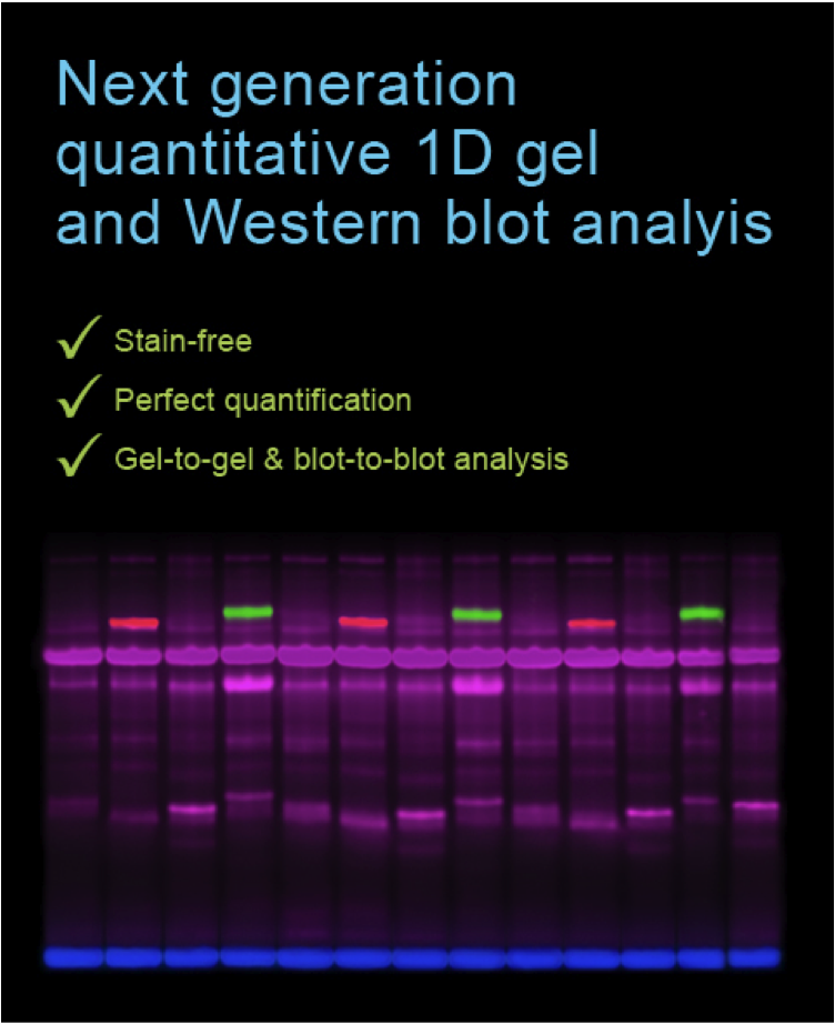 Figure Smart Protein Labeling for quantitative 1D gels and Western blots
